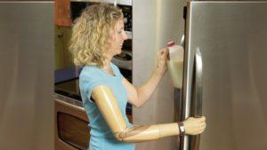 upper limb prosthetics tucson az